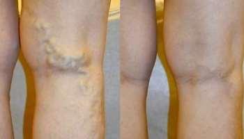 érháló a visszér lábain trombózis visszérrel a lábakon