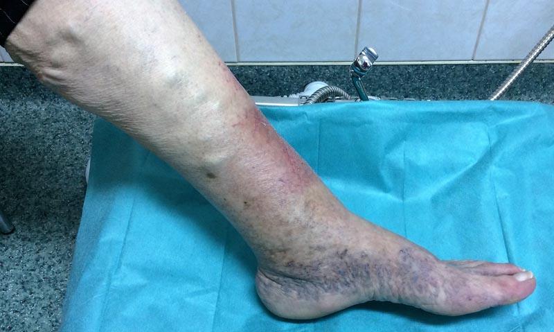 Kiütés a lábakon, visszér fotó