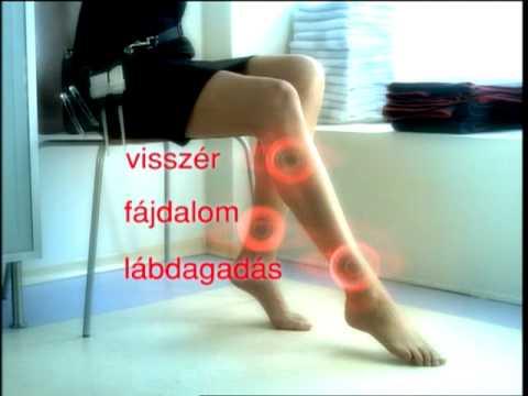 darsonvalization visszér videó