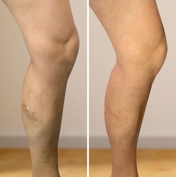 a láb visszér műtét utáni ellátása rugalmas kötés a visszér ellen