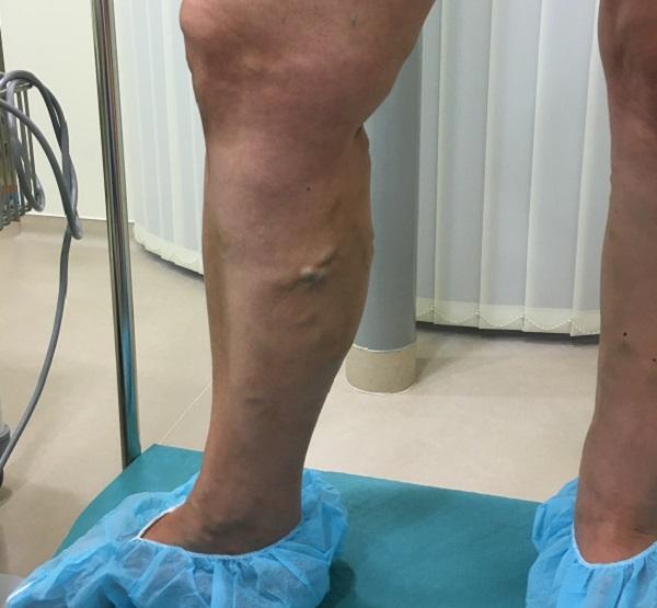 lábsütés visszeres a lábak mélyvénáinak visszérkezelése