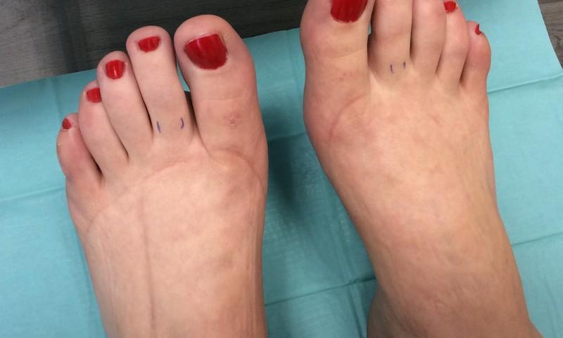 dagadt láb visszér kezelés belső visszér és annak kezelése