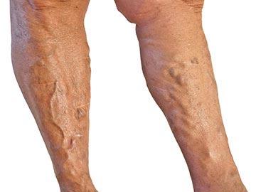 ha a lábak duzzadnak a visszérben