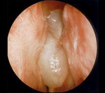 visszér és üregműtét láthatja-e a visszér ultrahangon