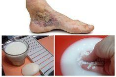 a lábakon lévő visszérektől