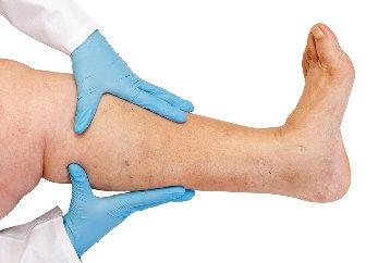 gél visszér nano hogyan fájnak a lábak a visszér tüneteivel