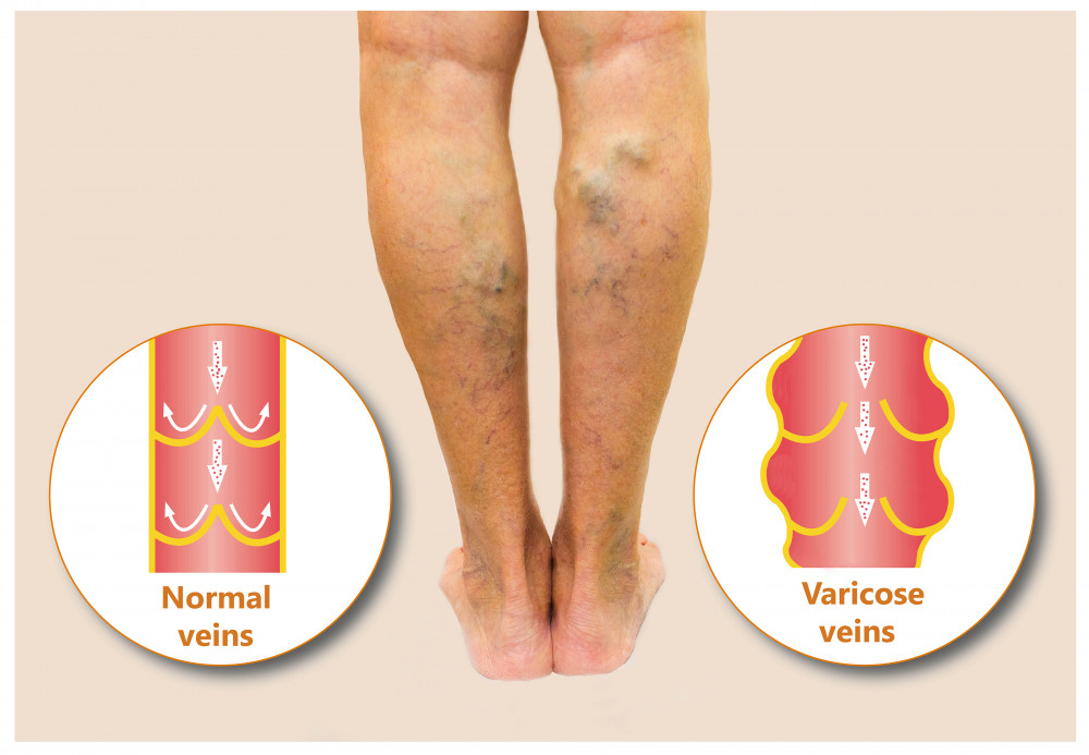 öregségi foltok a visszér lábain a lábak elkerülik a visszerek visszérét a lábakon