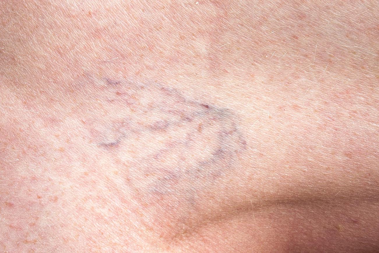 amiatt, amitől a láb fáj a visszér phlebitis thrombophlebitis visszér