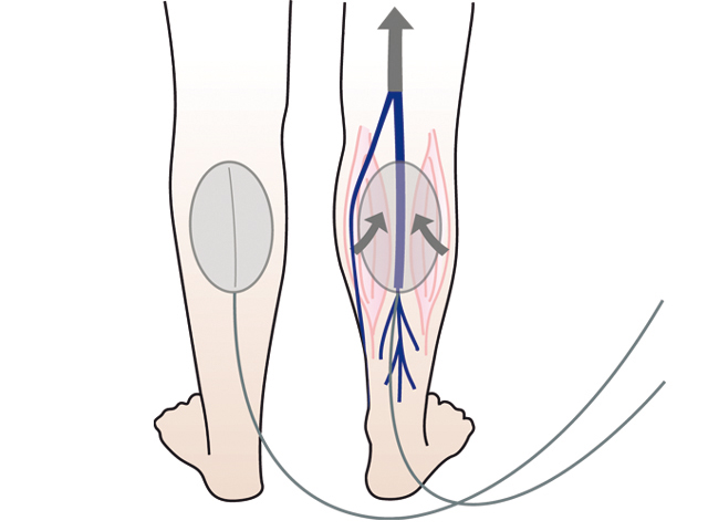 a jodinol visszeres alkalmazása ortopéd lábszárvédők visszerekből
