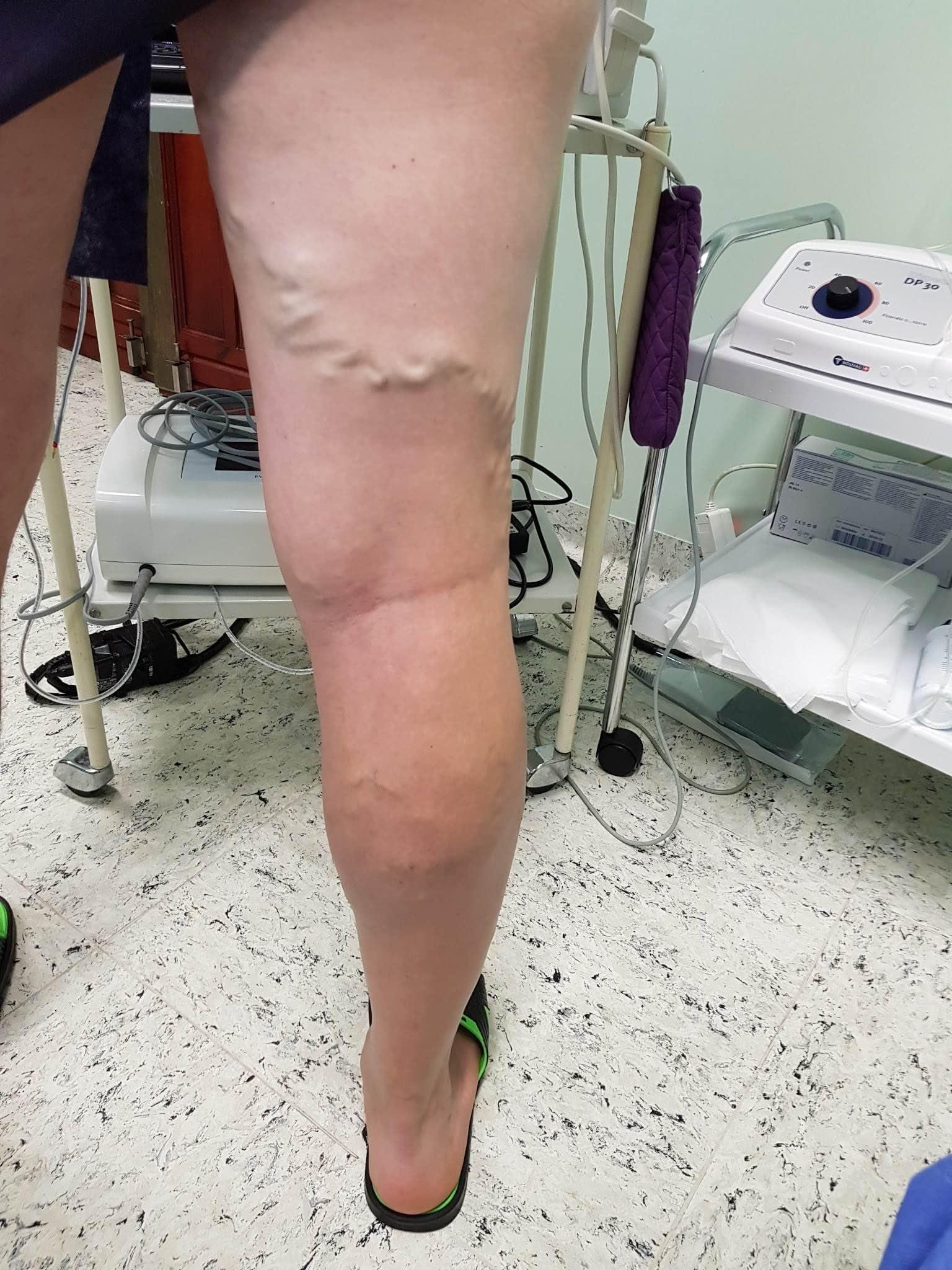 a lábak visszérműtéte a műtét következménye