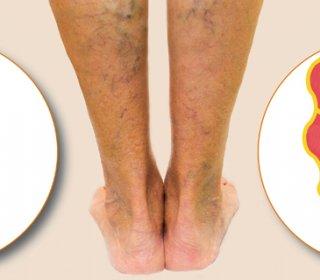 mindez a visszerek a lábakon fájdalom a lábakban a térd alatt visszér