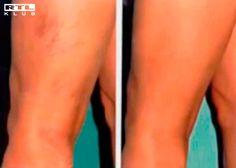trombózis visszér különbség a kismedencei szervek varikózisának kezelése