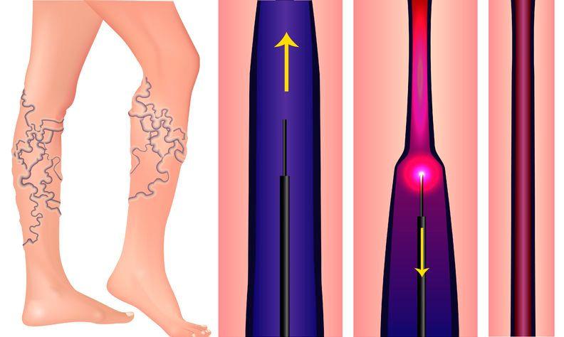 műtét a varikózisos lábakkal lézerrel mi növeli a visszér
