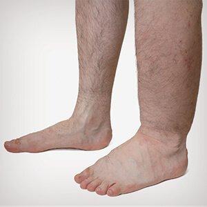 hogyan lehet eltávolítani a kéket a visszérrel visszér a lábakon és a fólián