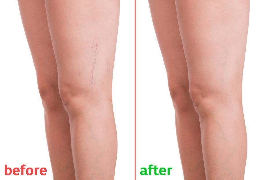 visszér esetén a lábak megduzzadhatnak reparil visszér ellen