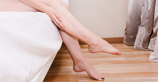 mit kezdjünk a láb visszérével visszér fekete láb