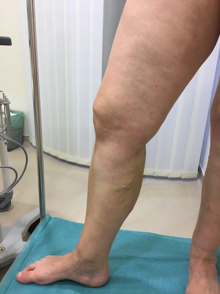 gyakorlat a lábak számára a visszér műtét után
