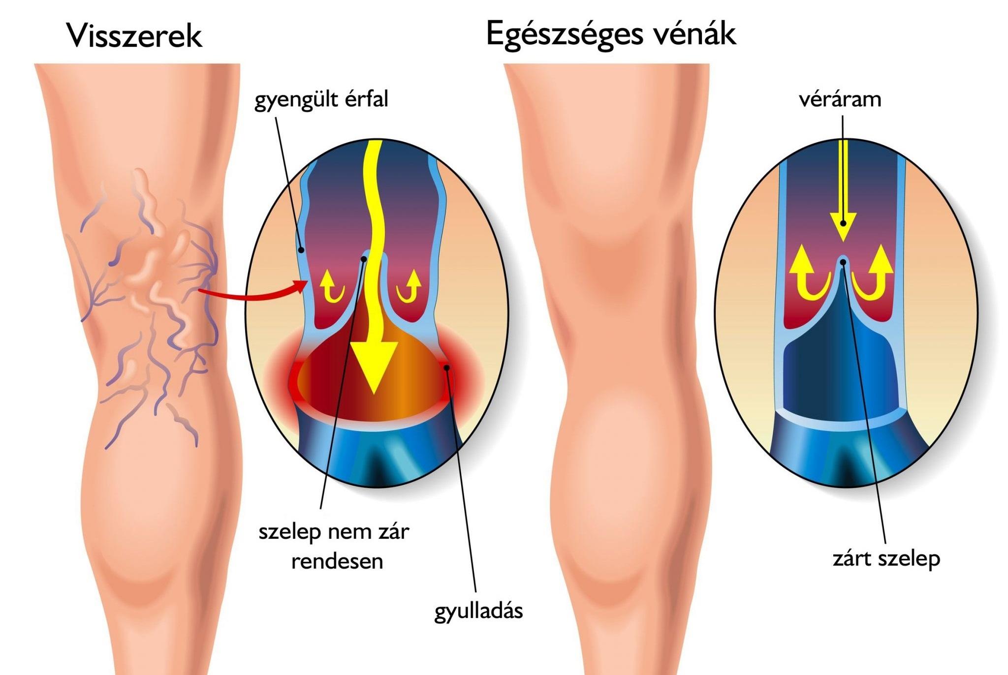 sclerosants visszér ellen visszerek kezelése a lábakon