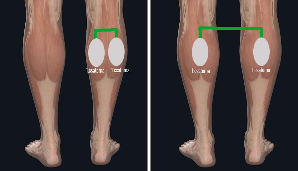 a lábak nehézsége nem a visszér oka