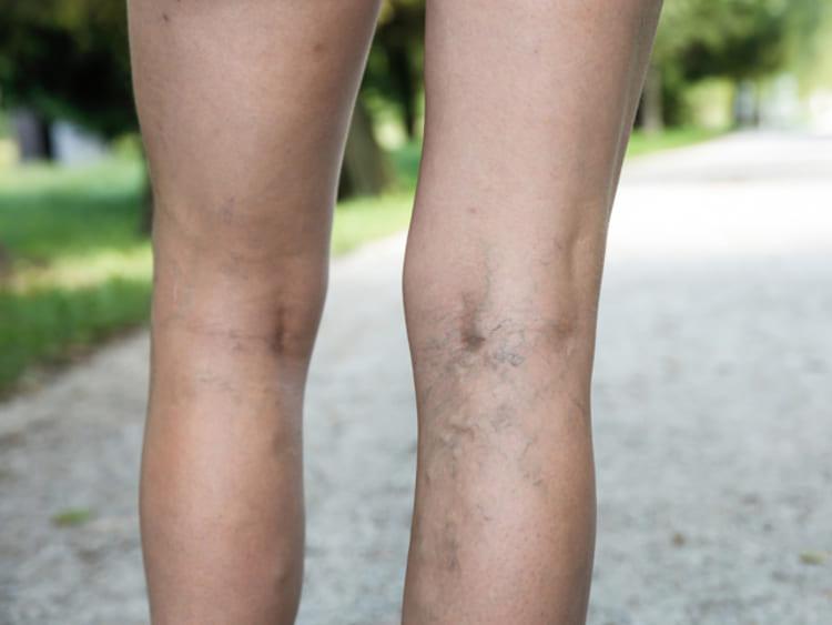 A lábak bőrének sötétedése visszeres, A bőr sötétedése a lábakon