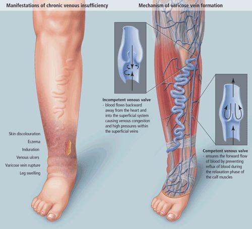 Hogyan lehet enyhíteni a lábérzékenységet szívelégtelenséggel? - Asztma September
