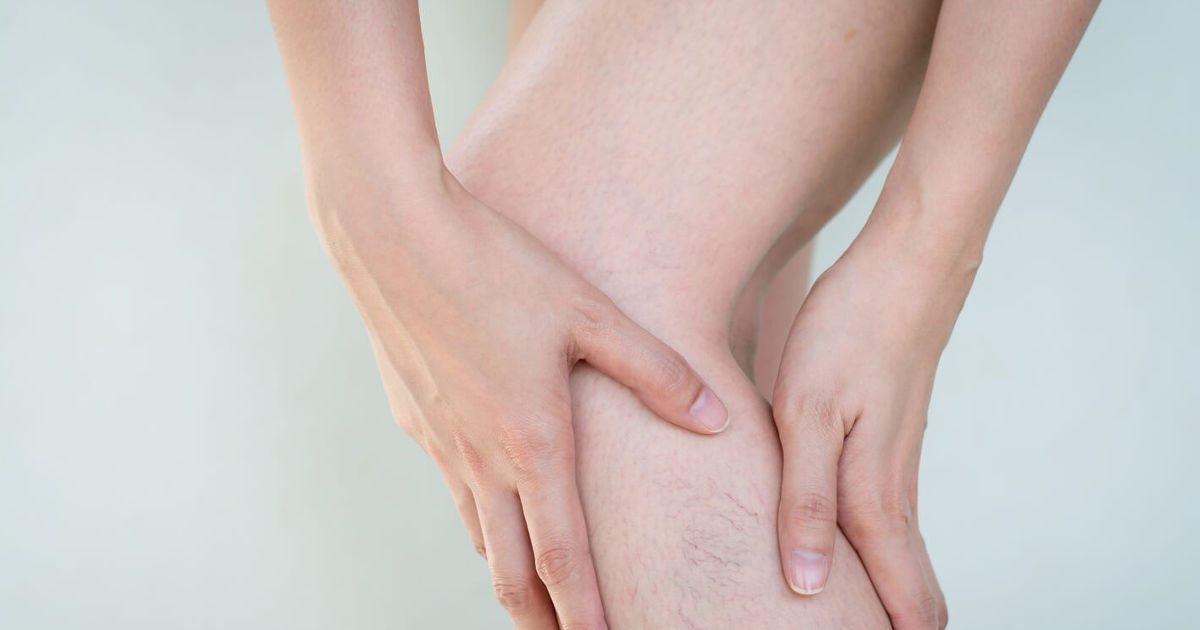 Fotó a láb bekötéséről visszérrel. Így kezelhető a visszeres láb