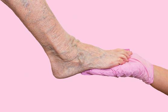 visszérrel, a lábak megcsavarodnak