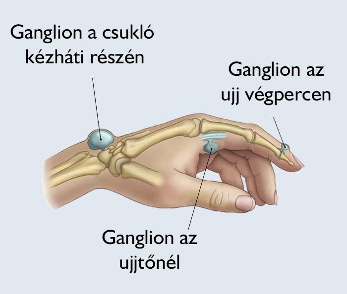 a térd alatti varikózis oka)