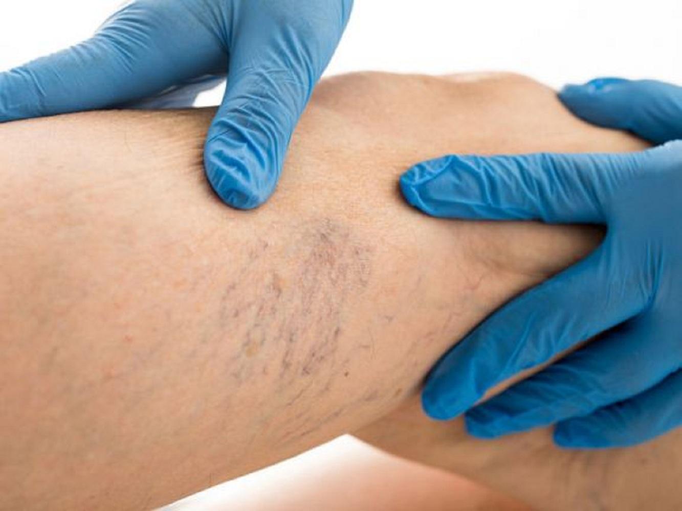 megáll a visszér vakolat visszerek kezelése duzzadó lábak