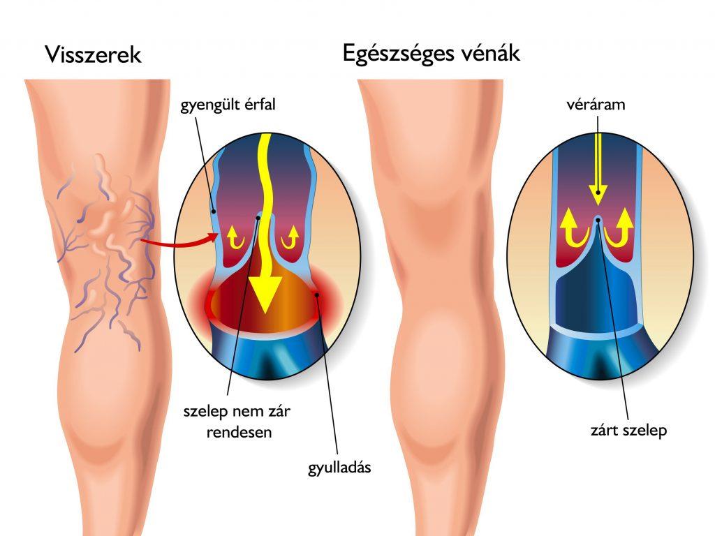a visszér fáj a láb és a comb között