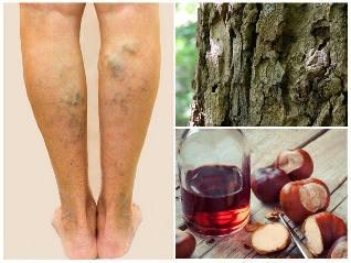 a hagyományos orvoslás receptjei a visszér kezelésére a láb bőrének megvastagodása visszeres