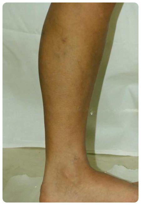 a láb visszér műtét utáni ellátása a legjobb krém visszerek a terhes nők számára