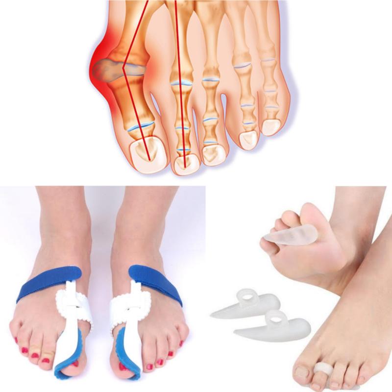 a lábak varikózisának alternatív kezelése