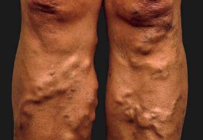a lábak visszérgyulladása tüneteket okoz a visszér formái