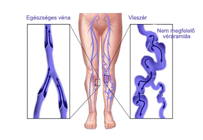 a perineum súlyos visszérrel hogyan nyalja a visszér