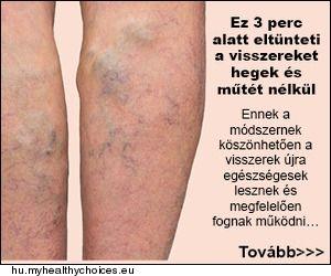 Kötöttáru visszerek a lábakon - Visszerek a lábon: mikor forduljunk orvoshoz?