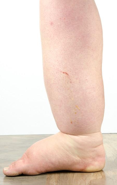 a visszér nagyon fájdalmas láb