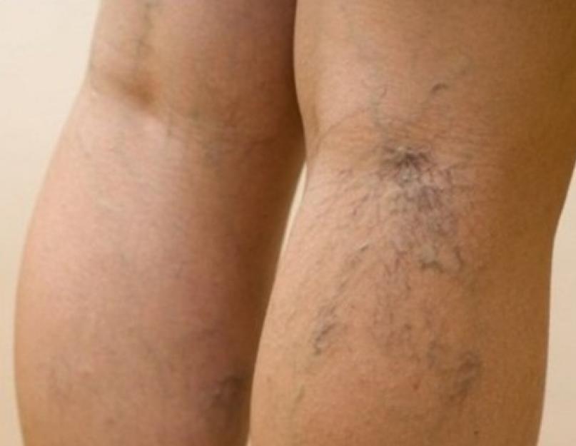 hogyan lehet azonosítani a visszerek a lábak fotó