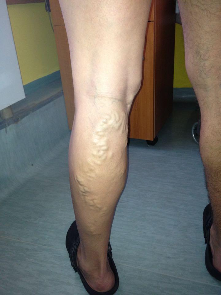 hogy néz ki a láb visszeres műtét után az egész láb fáj a visszérben