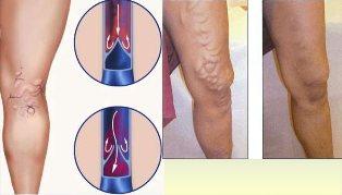 kontrasztzuhany visszeres lábakon visszér elleni gyógyszer reklámozása