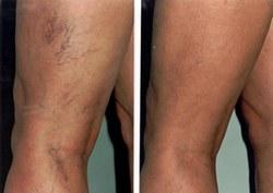a visszérektől segített milyen típusú visszér van a lábakon