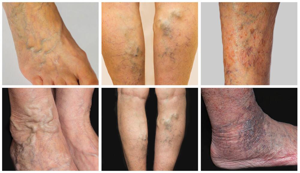 szegmentális visszerek patológiás veno-vénás váladékozás nélkül visszeres bőrelváltozások