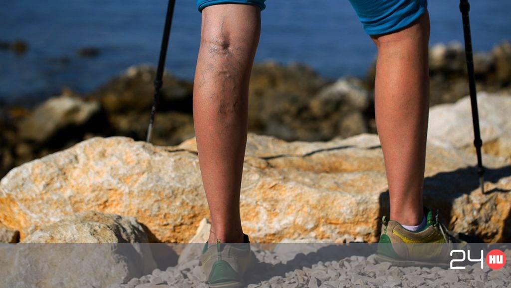 a medence visszérje az endometriosis miatt visszeres fájdalom tünete