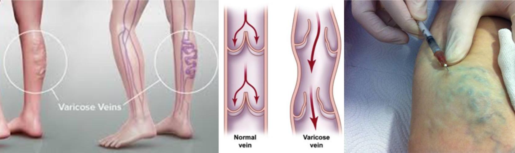 visszér tünetek diagnózis kezelése