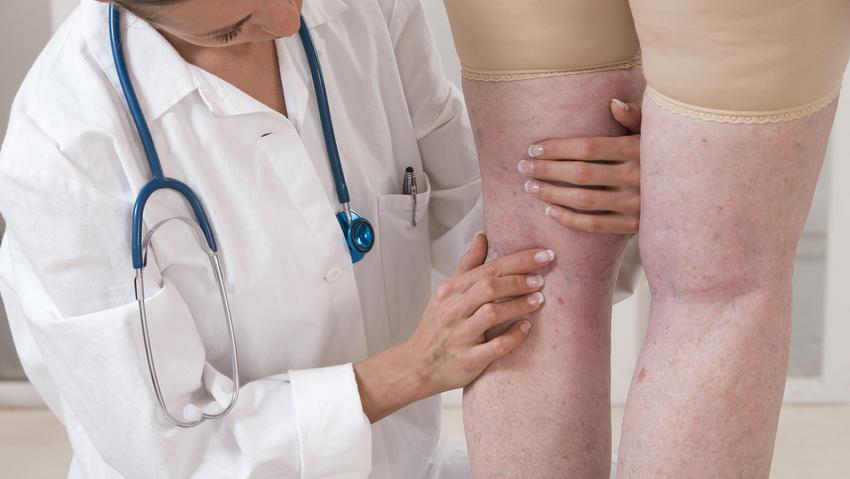 visszér, hogyan lehet a visszeres lábakat bekötni kompressziós térdmagasság a sarok nélküli visszerek esetén