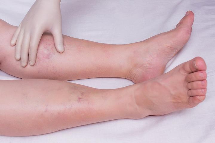 Lábszárfekély tünetei és kezelése - A lábakat rugalmas kötéssel kötözik a visszér ellen