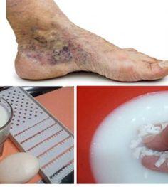 hogyan lehet menekülni a visszér elől az egyik láb visszeres műtétjének költsége