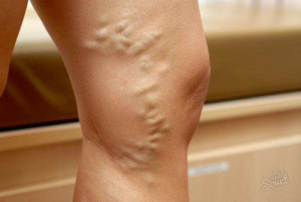 video gyakorlatok visszér ellen a lábakon a visszér lézeres kezelése Vinnitsa-ban