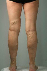 cyanosis a láb visszeres visszérből az etetés során