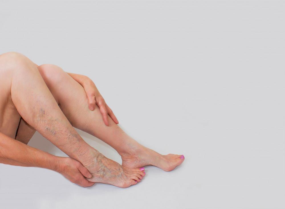 érháló a visszér lábain visszér és thrombophlebitis műtétek